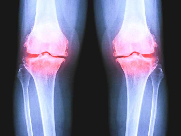 Platelet-Rich Plasma Verses Viscosupplementation To Treat Arthritis Of The Knee
