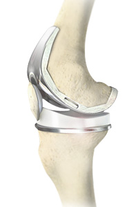 New Medical Device May Eliminate Need for Some Knee Replacement Surgery