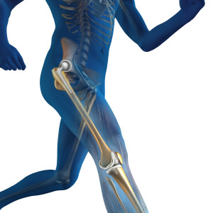 Link found between gut bacteria, successful joint replacement.