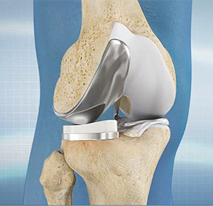 Rehab After Partial Knee Replacement.