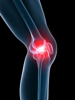 Improving outcomes for serious knee injuries