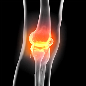 Study dispels myth of exercise damage in the treatment of osteoarthritis of the knee.