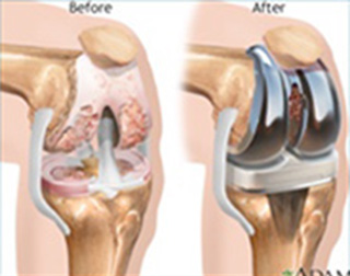 Total Knee Joint Replacement (TKR)
