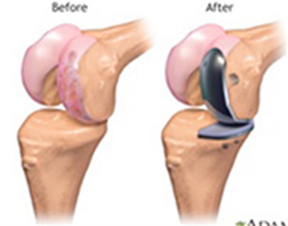 Partial Knee Joint Replacement(PKR)
